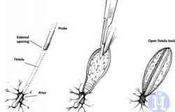 fistulotomy