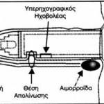 Τεχνική Απολίνωσης των Αιμορροίδων κατά THD ή HAL