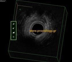 αποστημα πρωκτου- υπερηχογραφημα- διάγνωση