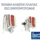 Technique of spincterotomy