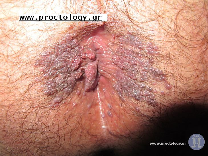 picture-of-anal-warts-slutty-star-wars-sex